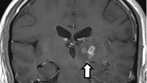 Un bărbat a stat cu un vierme în creier timp de patru ani (Galerie Foto)
