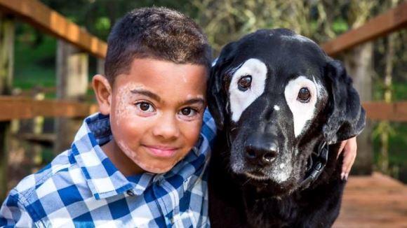 Se ura din cauza condiţiei cronice de care suferea, până ce şi-a întâlnit câinele-geamăn. Povestea impresionantă a unui băieţel bolnav de vitiligo - Galarie foto