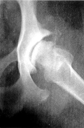 Artroza la caine