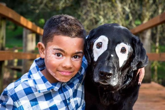 Se ura din cauza condiţiei cronice de care suferea, până ce şi-a întâlnit câinele-geamăn. Povestea impresionantă a unui băieţel bolnav de vitiligo (Galarie foto)
